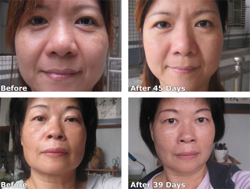 Luminesce™ before and after photos